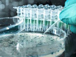 Gen Klonlaması Nedir, Aşamaları Nelerdir?