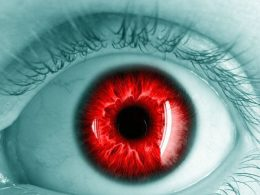 Bazı Fotoğraflarda Gözlerimiz Neden Kırmızı Çıkar?