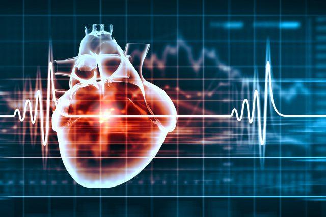 Kalp Romatizması Nedir, Belirtileri Nelerdir?