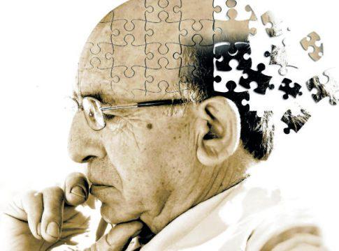 Alzheimer Nedir, Belirtileri Nelerdir?