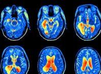 Beyin Taramaları Nasıl Çalışır? (EEG, MR ve PET Teknikleri)